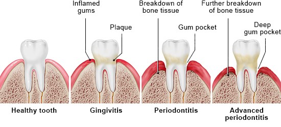 Illustration: Healthy tooth, gingivitis and periodontitis