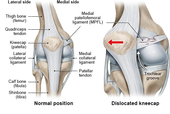 Illustration: Healthy knee joint (left) and dislocated knee (right)