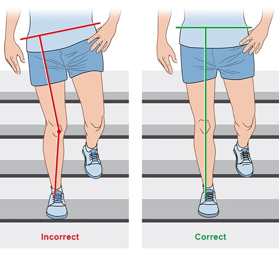 Illustration: Alignment of the leg while going down stairs