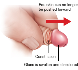Illustration: The foreskin can no longer be pushed forward over the glans, and the blood supply is constricted – as described in the article