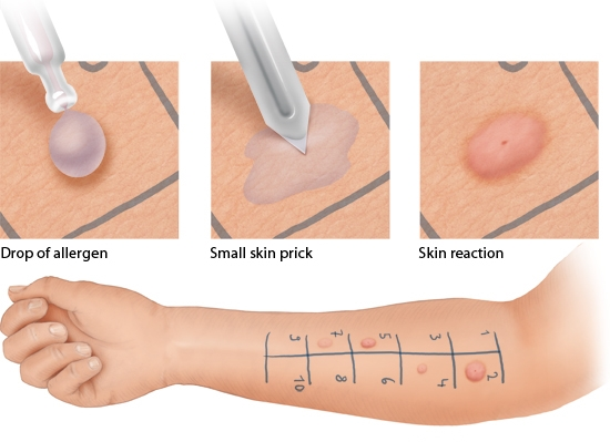 Illustration: Skin prick test – as described in the information