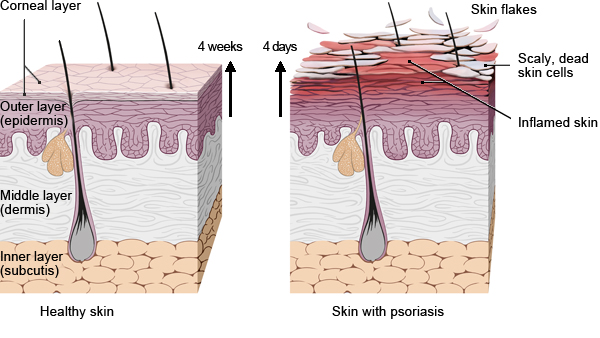 Illustration: Growth and shedding of keratinocytes in psoriasis – as described in the article