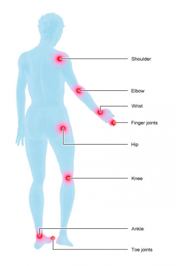 Illustration: Joints commonly affected by rheumatoid arthritis
