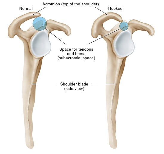 Illustration: Normal and hooked acromion (side view of the right shoulder)