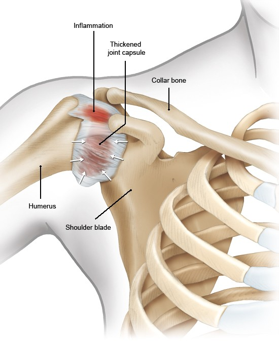Illustration: Shoulder with an inflamed joint capsule – as described in the article