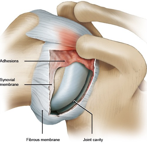 Illustration: Frozen shoulder: Scar-like tissue (adhesions) in the joint capsule – as described in the article