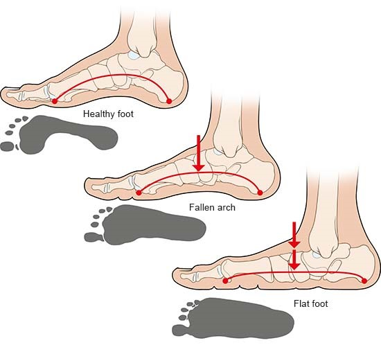 Illustration: Healthy foot, fallen arch and flat foot – as described in the article