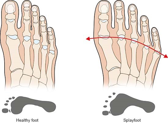 Illustration: Healthy foot and splayfoot – as described in the article