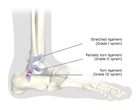 Illustration: Foot bones (outer side) with grade I, II and III sprains – as described in article