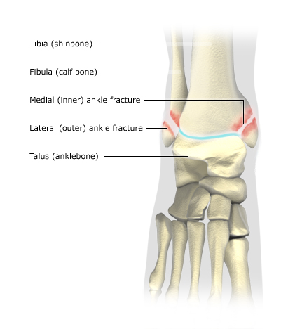 Illustration: Ankle injuries: Fracture of inner and outer ankle - as described in the article