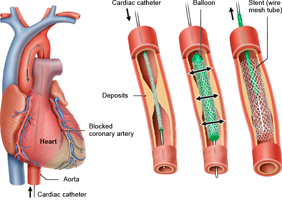 Illustration: Cardiac catheter with balloon and stent