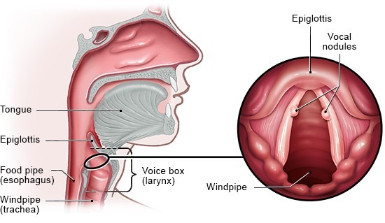 Illustration: Vocal nodules usually occur on both vocal cords, opposite each other – as described in the article