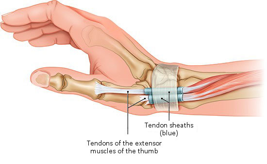 Illustration: Tendons are protected by tendon sheaths