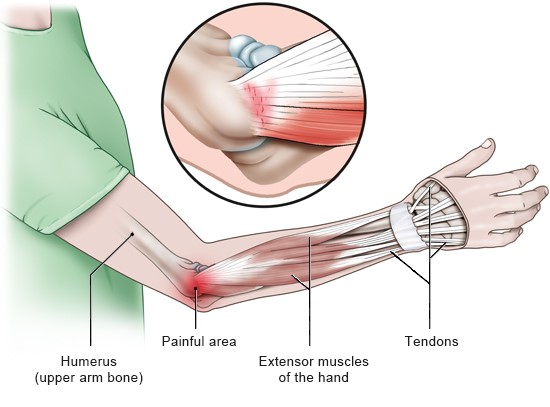 Illustration: Painful area in tennis elbow – as described in the article