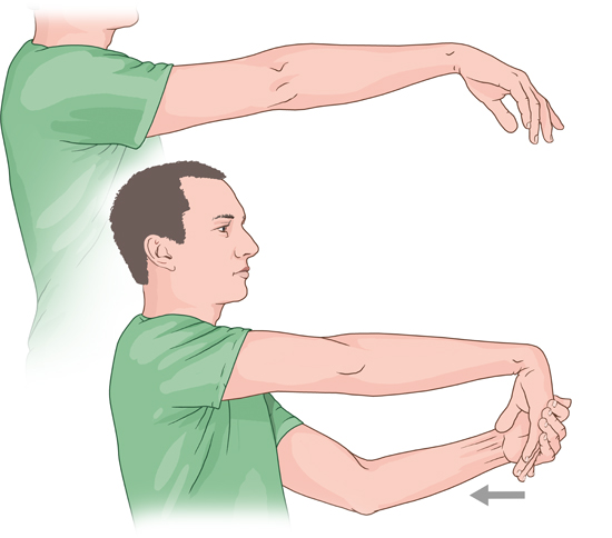 Illustration: Stretching exercise for tennis elbow – as described in the article