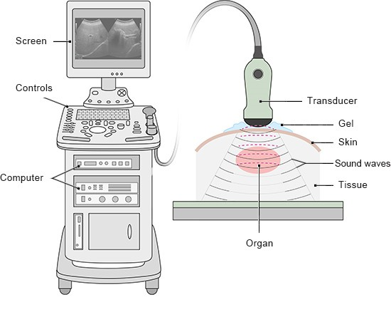 Illustration: Ultrasound machine with a screen and transducer – as described in the information