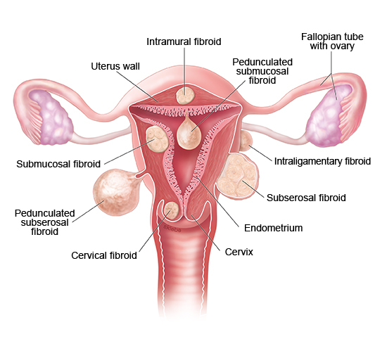 Illustration: Different types of fibroids