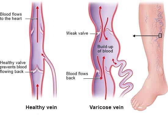varicose născut comentarii despre operațiunea varicoza vene