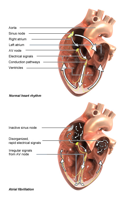 Illustration: Normal heartbeat and atrial fibrillation – as described in the article