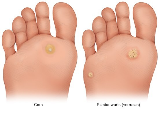 Illustration: It is easy to tell the difference between a corn and a plantar wart (verruca)