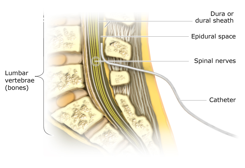 Illustration: Epidural catheter - as described in the article
