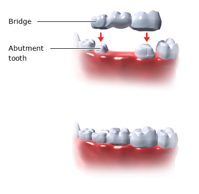 Illustration: Bridge - as described in the article