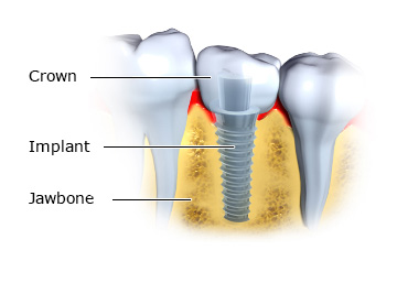 Illustration: Implants with artificial tooth attached at the top - as described in the article