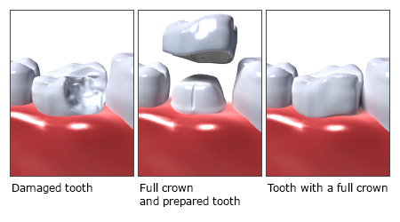 Illustration: Full crown - as described in the article