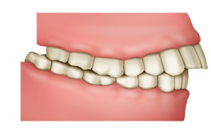 Illustration: Overbite with sticking-out upper front teeth
