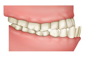 Illustration: Underbite with sticking-out lower front teeth Underbite with sticking-out front teeth