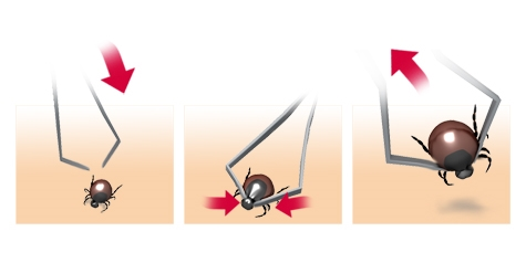Illustration: Removal of a tick using tick tweezers – as described in the article