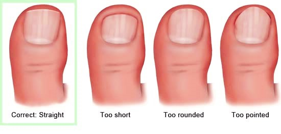 Illustration: The correct cutting technique – as described in the article