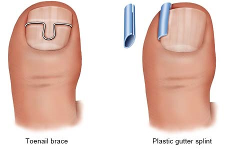 Illustration: Brace or splint as a treatment option - as described in the article